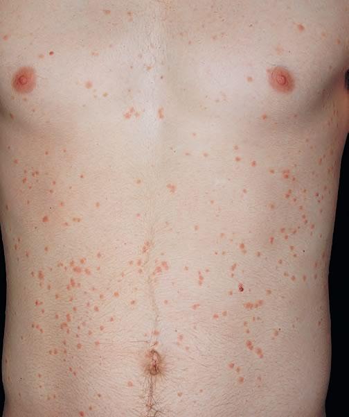 cauze dermatita atopica imagini de primavara