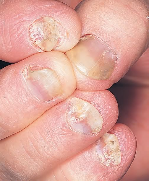 dermatita in cape
