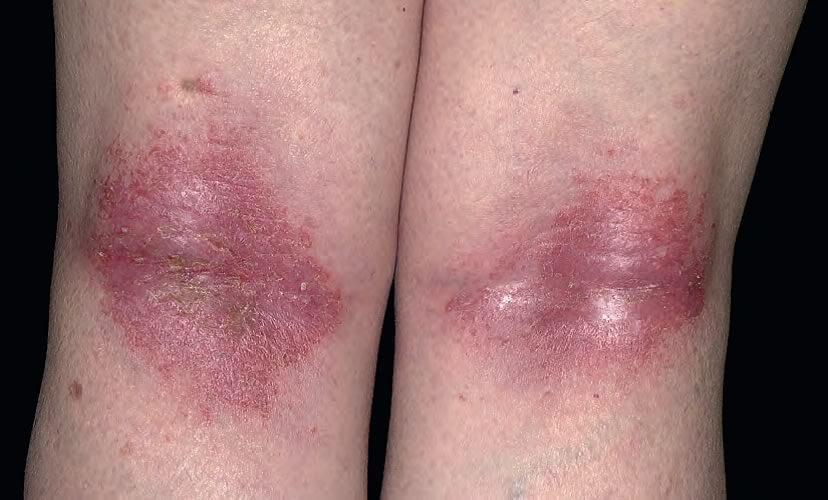 dermatita seboreica fata poze cu bebelusi draguti