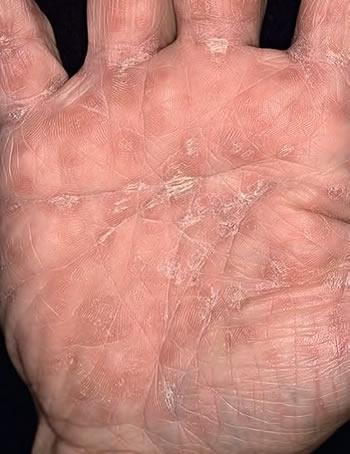 leziuni palma sifilis