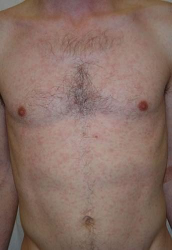 leziuni piele sifilis