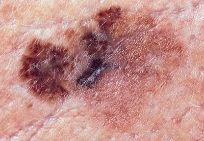 melanomul