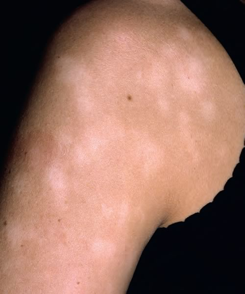 Can adults get pityriasis alba