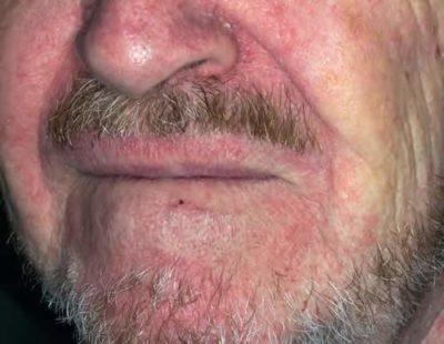 dermatita seboreica fata