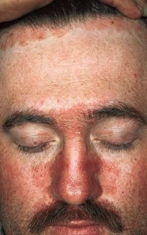 Dermatita Seboreica Scalp