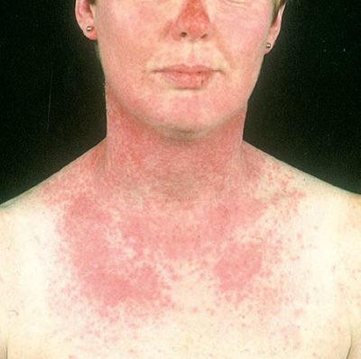 Alergia Solara