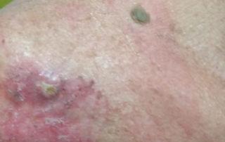cancer piele
