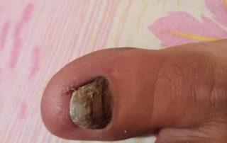 infectie micotica unghie