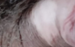 pata vitiligo
