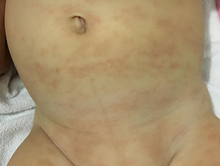 iritatie piele bebelus