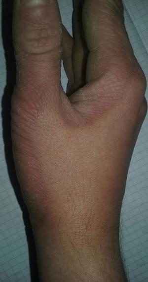 boala piele mana