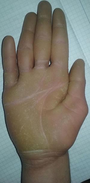 boala piele palma