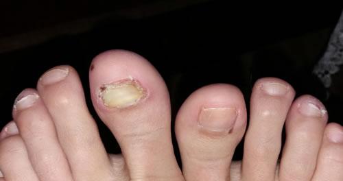 ciuperca unghiilor