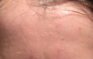 acnee tarzie