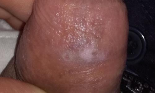 Lichen scleroatrofic penian
