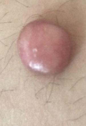 tumora benigna