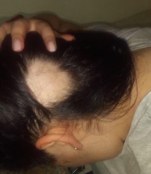 alopecie areata