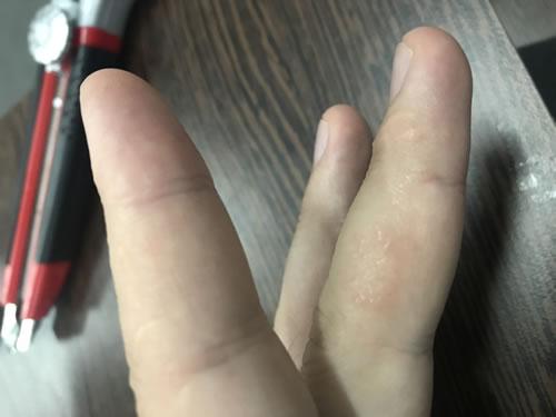 bubite degete